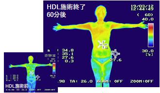 施術前・施術後の体温の変化